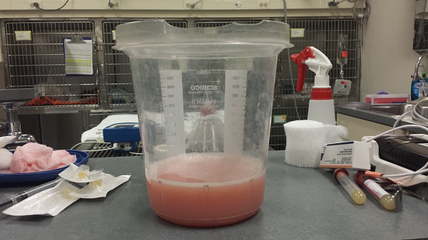 Thursday, 4/23/2015 - This is the fluid that was taken from Ronnie James' chest cavity. It's 300 ml (a cup and a quarter), and it's not even all that was in there. The doctor didn't want to try to drain all of it, because it would have been too risky. The fluid is chyle (chyle can either be cloudy or pink).